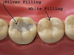 Litz Kidz Dental Filling Types